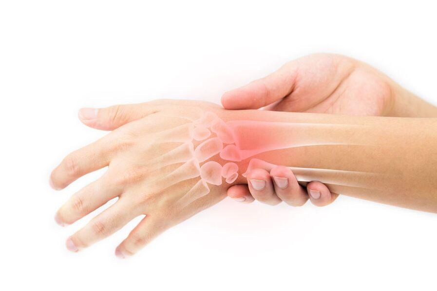 Comanda cremă artropantă